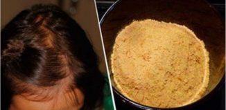 Remedio casero para evitar la caída del cabello