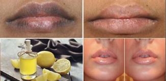 Remedio para labios suaves