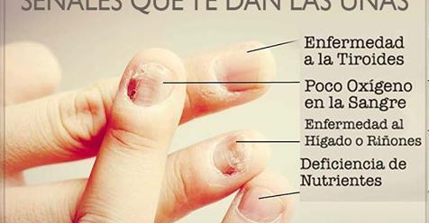 Señales que te dan las uñas