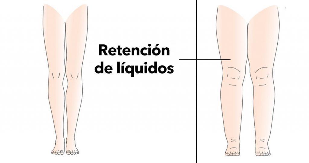 Razones por la que tu cuerpo retiene líquidos