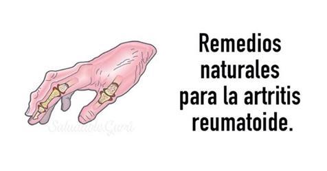 Remedios para aliviar artritis reumatoide