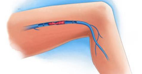 Síntomas de trombosis venosa