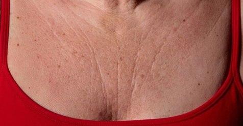 Remedios para las arrugas del pecho y cuello