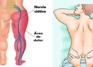Alivia el nervio ciático sin fármacos