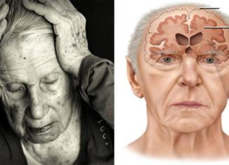 Cómo prevenir el Alzheimer