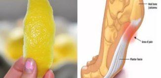 Cascara de limón para eliminar el dolor de las articulaciones