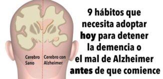 Hábitos para evitar el Alzheimer