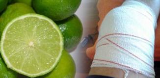 Limón y otro ingrediente maravilloso para eliminar dolor en las muñecas
