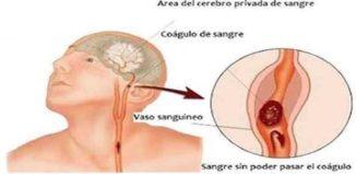 Lo que hay que hacer ante un derrame cerebral