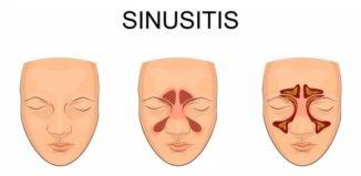 Método natural para combatir la sinusitis