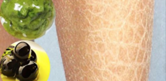 Remedios caseros para la resequedad de la piel