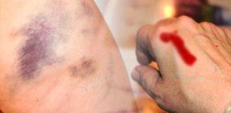Síntomas de leucemia silenciosos
