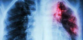 Bebida para limpiar los pulmones de un ex fumador