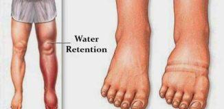 Causas de la retención de líquidos