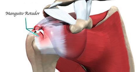 Consejos para aliviar el manguito rotador