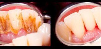 Remedio para eliminar el sarro de los dientes