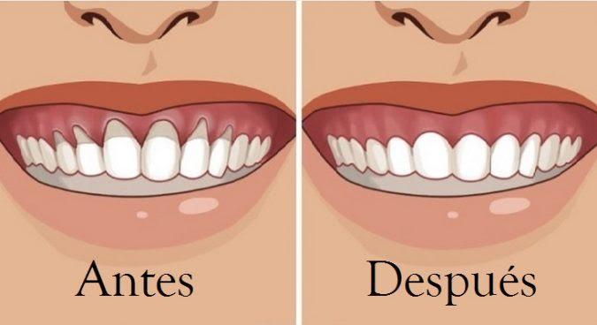 Remedios caseros para acabar con la retracción dental
