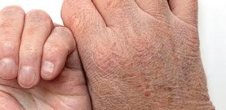 Piel seca es señal de estas enfermedades