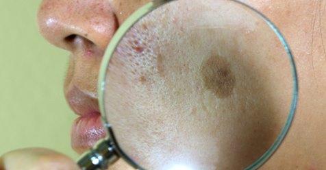 Tratamentos para o pano no rosto