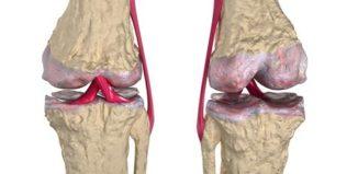 Remedios para la regeneración del cartílago de la rodilla