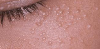 Remedio para acabar las bolas de grasa de la piel